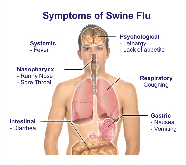 Natural Home Cures - Swine Flu - The Swine Flu Outbreak